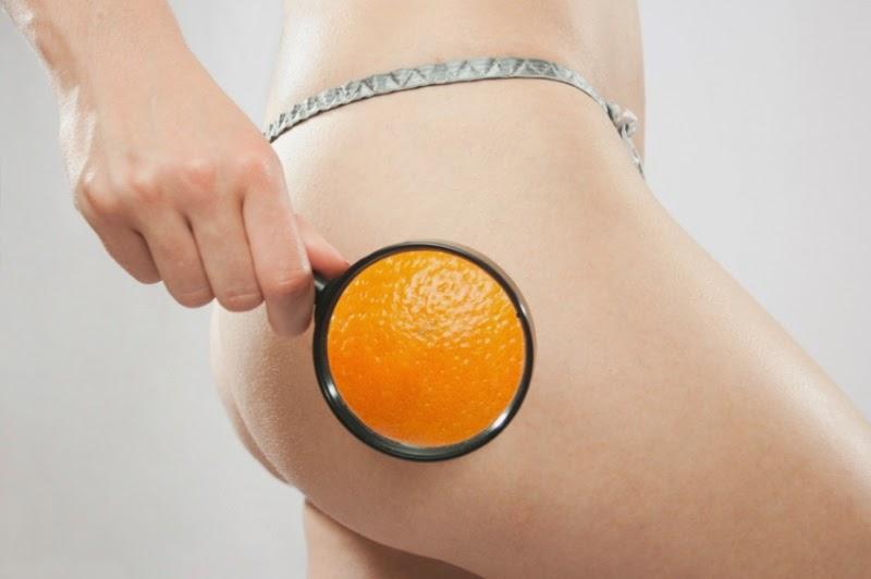Eliminar la piel de naranja en los glúteos