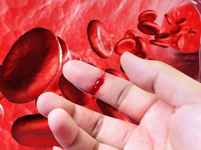 Hemorragias externas o heridas abiertas