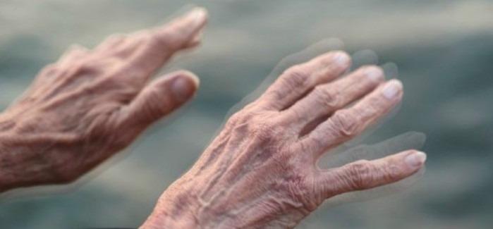 Síntomas y tratamiento del Parkinson