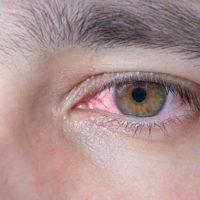 Causas de los ojos rojos y su tratamiento