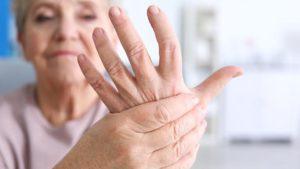 ¿Hay cura para la artritis reumatoide?