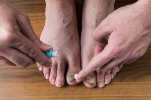 Consejos para eliminar la onicomicosis