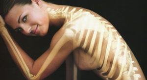 Remedios caseros para curar la osteoporosis