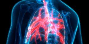 Tratamiento natural de la bronquitis