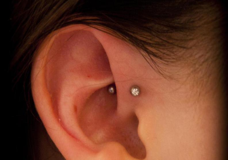 Cómo tratar los pitidos en los oídos
