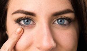 Remedios caseros para los ojos enrojecidos