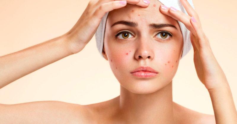 Tratamiento natural para el herpes labial