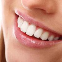¿Cómo eliminar el sarro de los dientes?