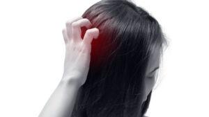 Granos en la cabeza: ¿Cómo evitarlos y tratarlos?