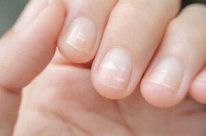 Uñas con rayas: causas y tratamiento
