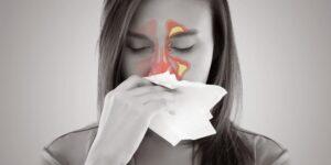 Taponamiento nasal
